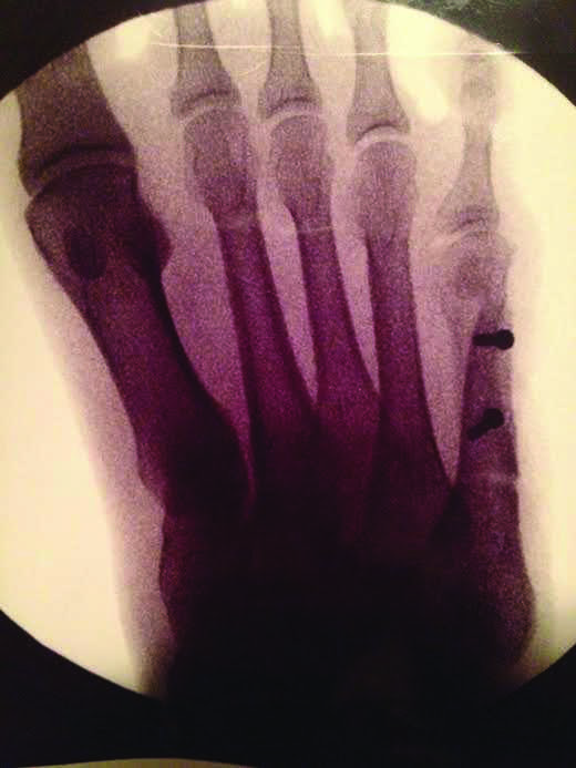 X-ray of Clemons' right foot. Courtesy of Ana Clemons.