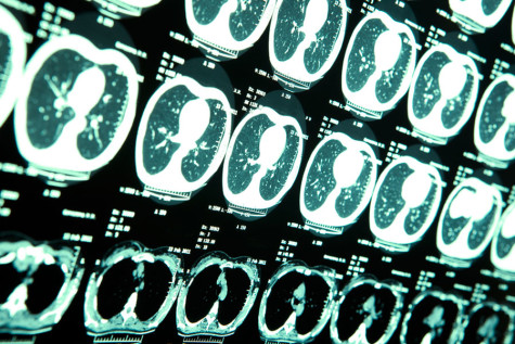 """""""Getting your bell rung"""": the danger of concussions"""