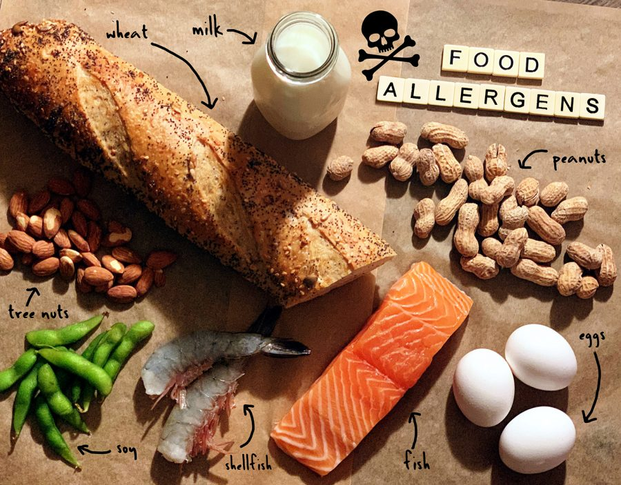 There+are+many+different+foods+that+people+can+have+allergies+to.